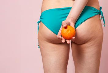 Žlázová porucha – celulitida
